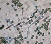 Aspergillus and Penicillium spores