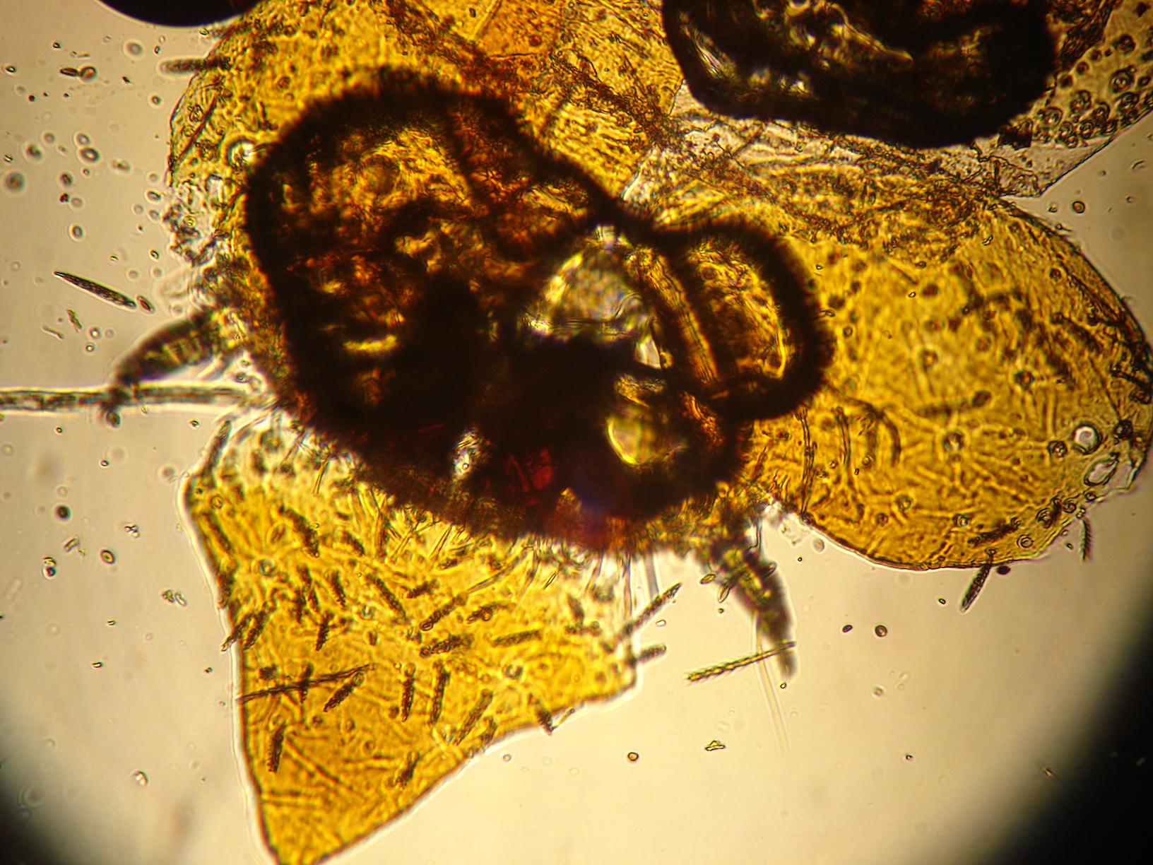 Carpet bug – Front Section